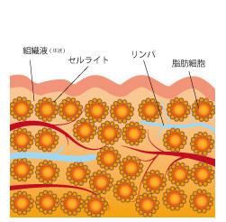 """""""頑固なセルライトと脂肪細胞にキャビテーション"""""""